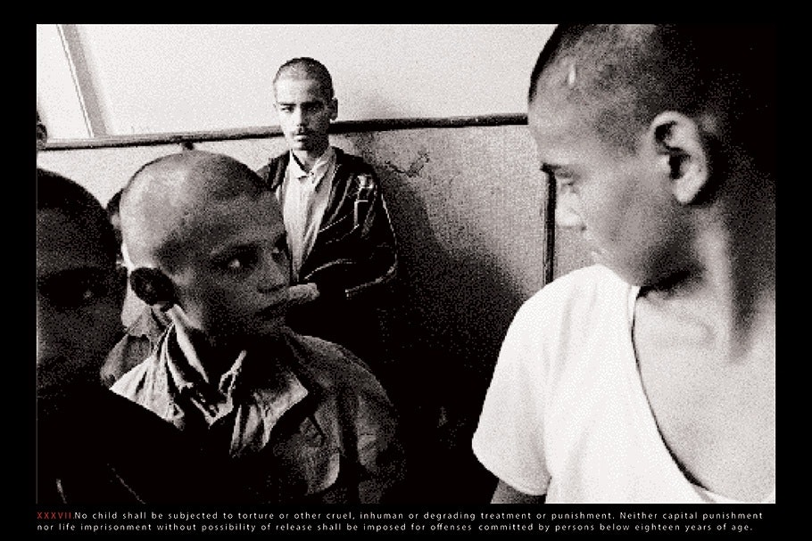 Children with shaved heads.
