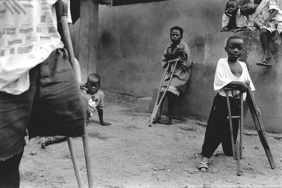 Children with crutches.