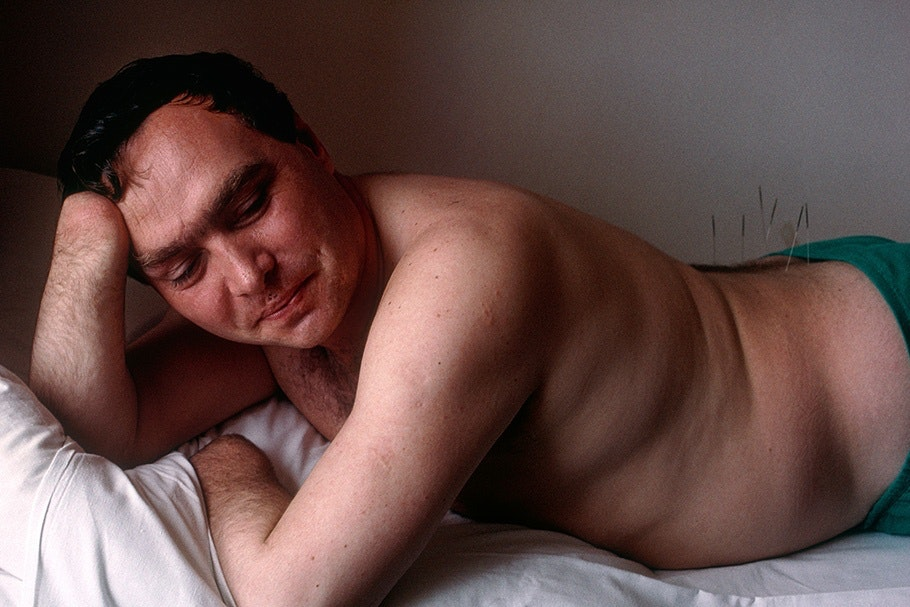 A man receiving acupuncture.