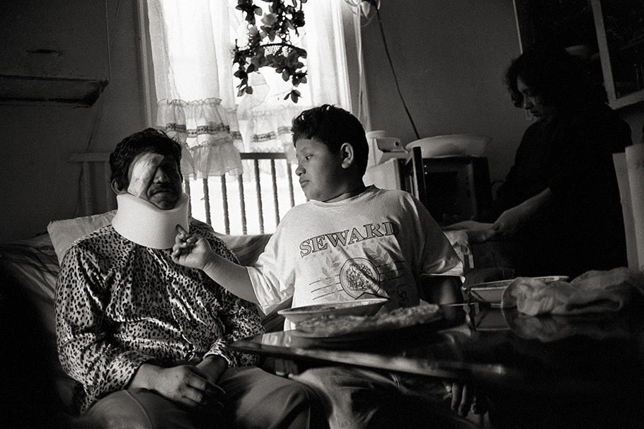 A boy touches his father's bandages.