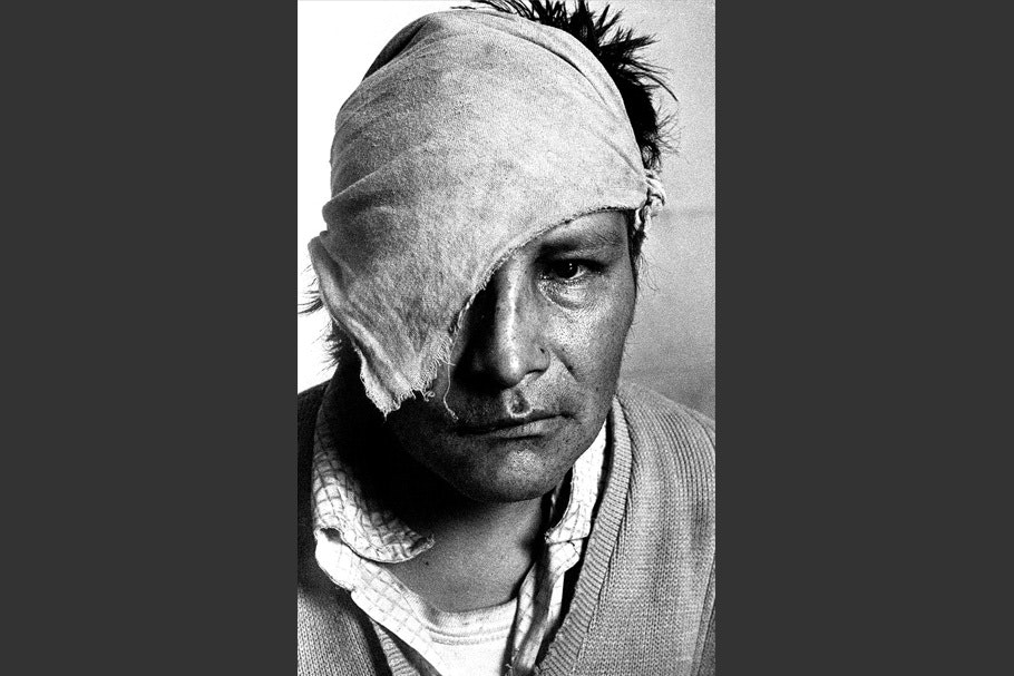 A Portrait of a wounded man.