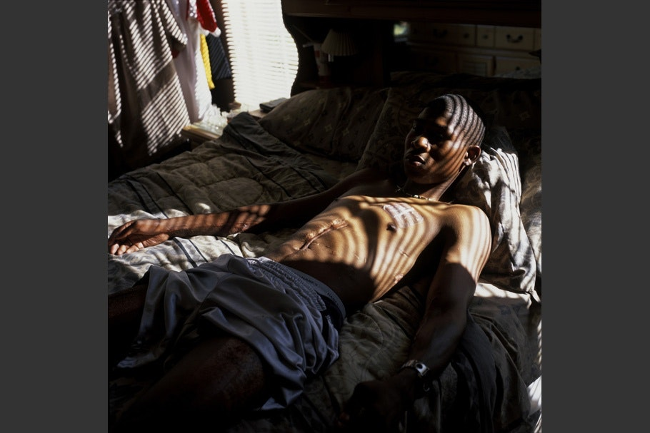 Soldier with scarred stomach on bed with streaked light.
