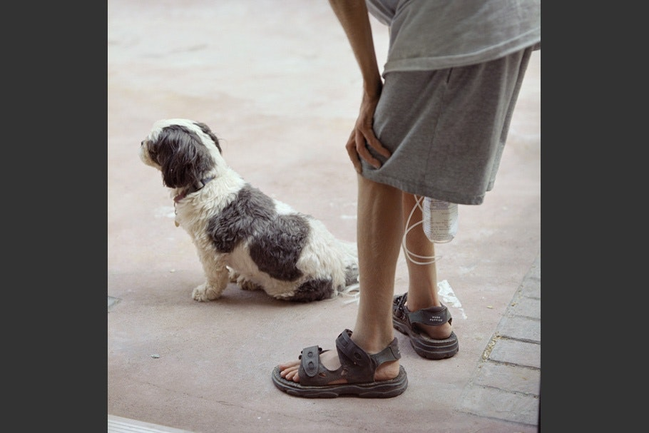 Boy's legs with an IV and a dog.