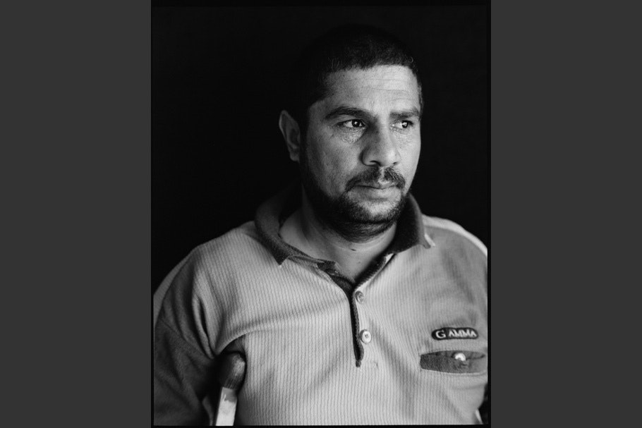 Man with short beard, polo shirt with pocket and label, crutch under right arm.