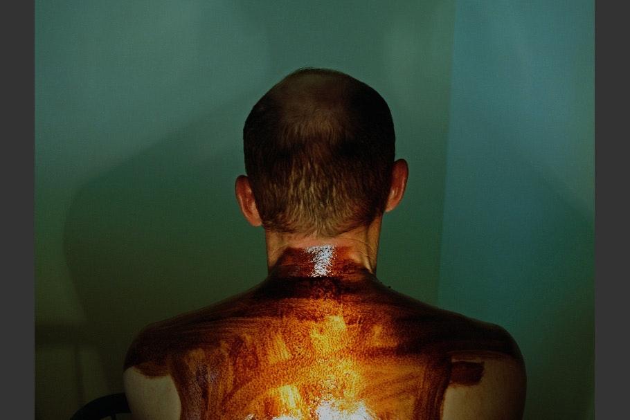 Oil smeared on man's back