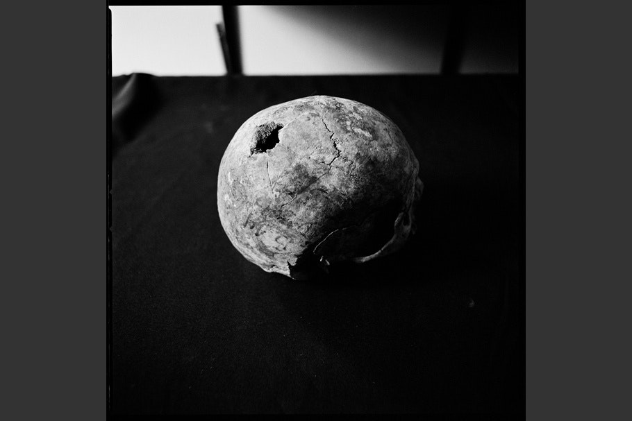 Skull with exit wound from a bullet